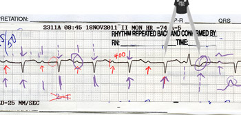 Advanced ECG